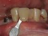 brug op implantaten