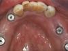 Verschroefde brug op implantaten