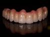 Zirkonium brug op implantaten 5