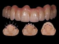 Zirkonium brug op implantaten 1