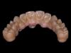 Zirkonium brug op implantaten 3