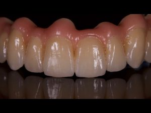 Zirkonium, tandtechniek, tandarts