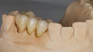 brug tandtechniek