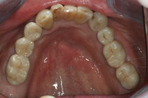 implantaat brug resultaat
