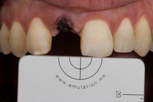 implantaat kroon front
