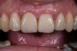 implantaat kroon front-5