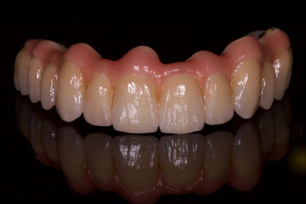 Kroon en brugwerk, Zirkonium, tandtechniek, tandarts