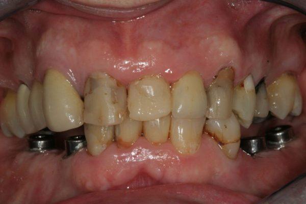implantaat brug begin