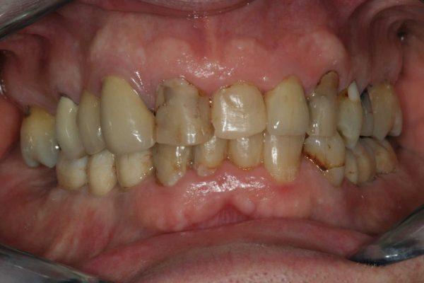 implantaat brug resultaat 2