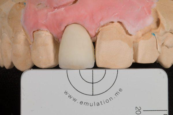 implantaat kroon front-2