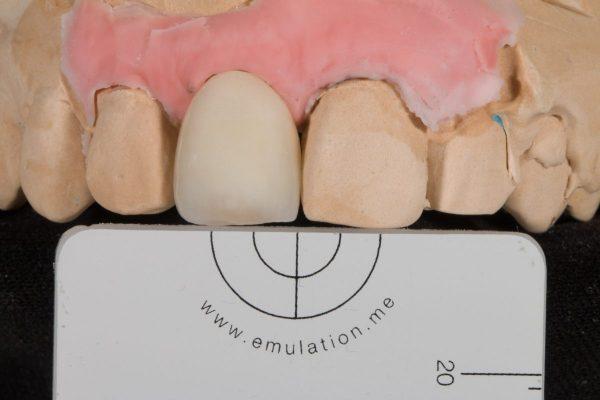 implantaat kroon front-3
